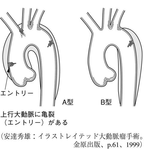 解離 スタンフォード b 大動脈