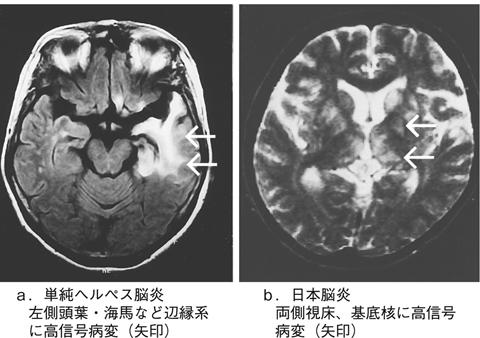 日本脳炎と類縁脳炎とは - 医療...