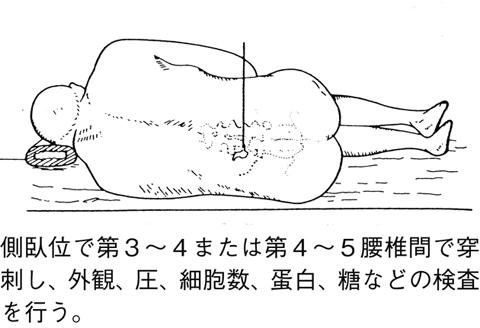炎 症状 膜 髄