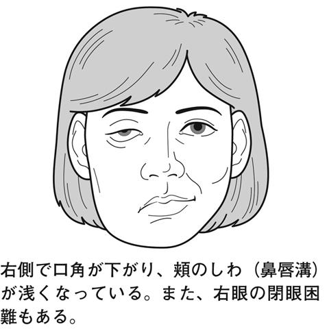 ベル 麻痺