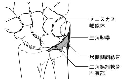 手関節TFCC損傷と手関節捻挫とは - 医療総合QLife