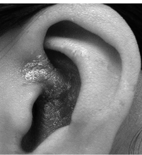 耳 が ガサガサ 聞こえる