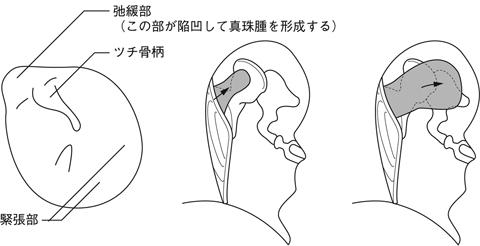 真珠腫性中耳炎とは - 医療総合Q...