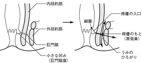 膿瘍 肛門 周囲