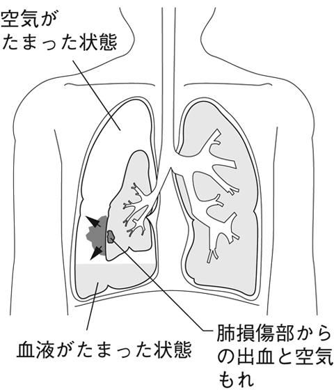 血胸とは - 医療総合QLife