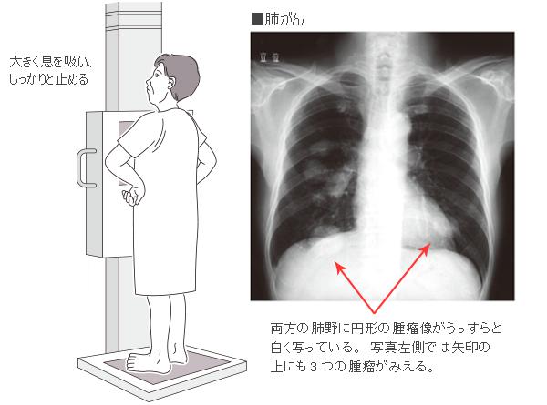 レントゲン 胸膜炎