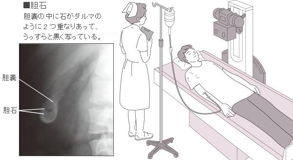 胆嚢 位置