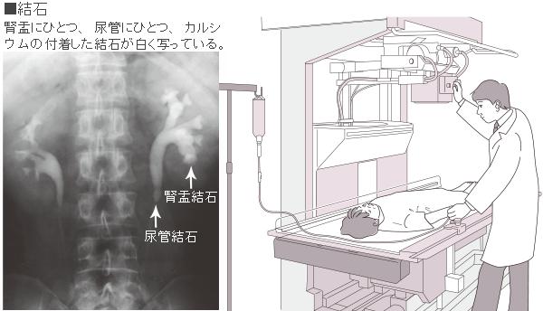 腎盂造影検査とは|病気の検査法を調べる - 医療総合QLife