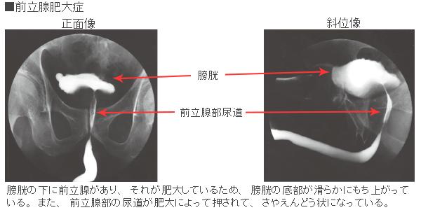 膀胱尿道造影検査とは|病気の検査法を調べる - 医療総合QLife