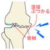 2400万人もの人が悩んでいる「変形性膝関節症」とは?