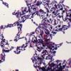 【1】どっさり1Kg以上もの菌?「腸内細菌」って何ですか