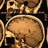 患者相談事例-154「最初の診療所で見逃された妻の脳梗塞。もっと慎重に診てくれるか、他院を紹介してくれたらと怒りを覚えます」
