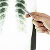 患者相談事例-158「肺に小さなカゲが見つかり、経過観察に。不安の余り、別の医院をいくつか受診したのですが…」