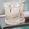 患者相談事例-184「歯科医師がインプラントの治療を中断。治療費の返金額について内訳や明細がなく困惑しています」