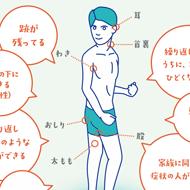 希少な皮膚の病気・化膿性汗腺炎が詳しくわかる情報サイトがオープン