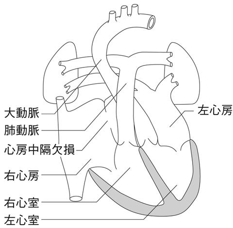 図13 心房中隔欠損 心房中隔欠損症とは - 医療総合QLife QLife心房中隔欠損症とは