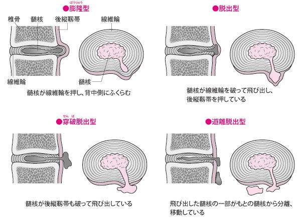 腰椎椎間板ヘルニアの四つのタイプ