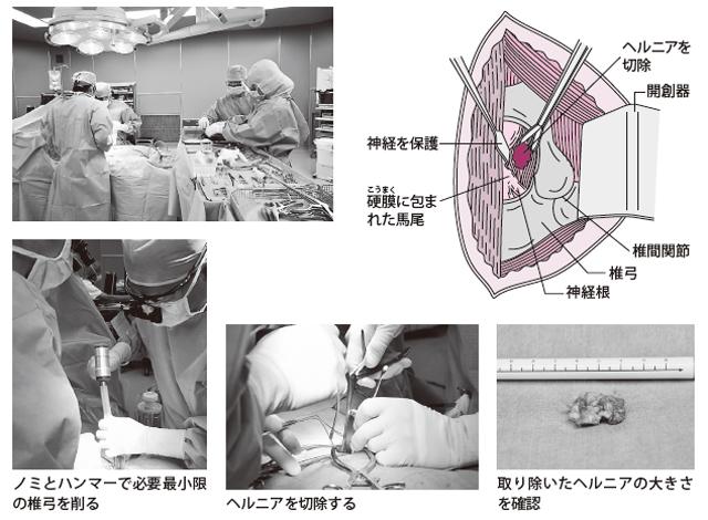 椎弓の一部を削り、ヘルニアを除去