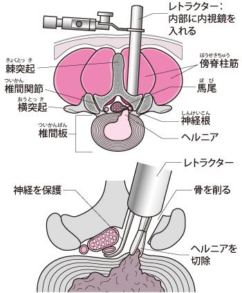 内視鏡を用いる手術法