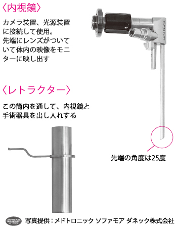 MEDに用いる内視鏡とレトラクター