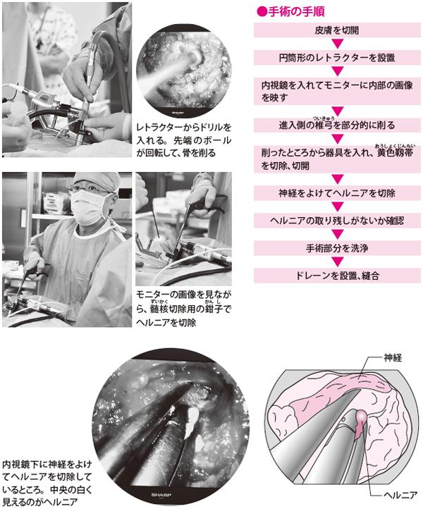 骨を削り、ヘルニアを切除(手術)