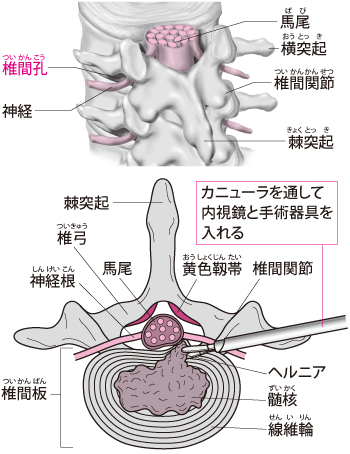 PEDの手術法