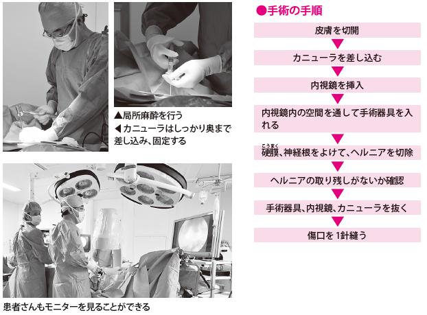 内視鏡を入れ、モニターに画像を映す(手術)