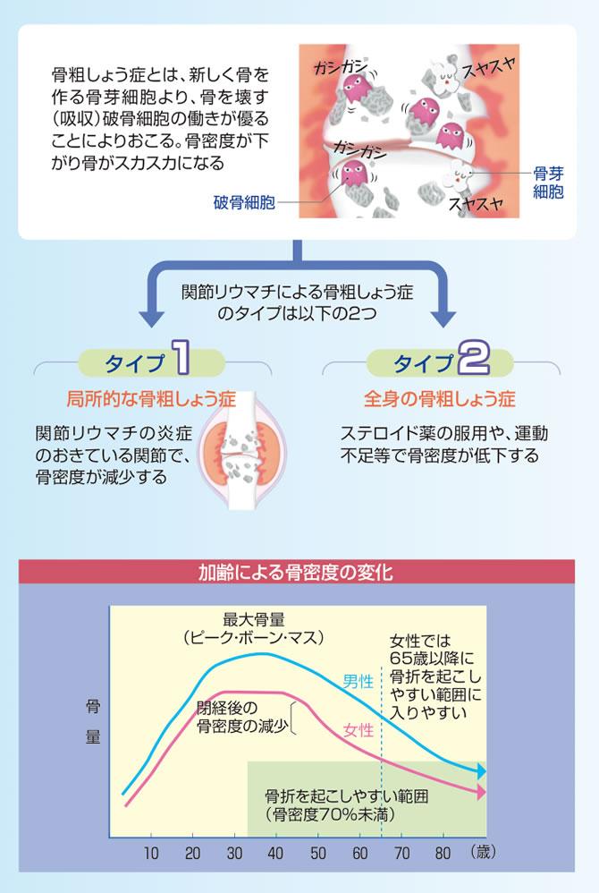 関節リウマチによる骨粗しょう症
