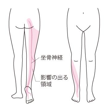 坐骨(ざこつ)神経は脚の感覚や運動にかかわっています