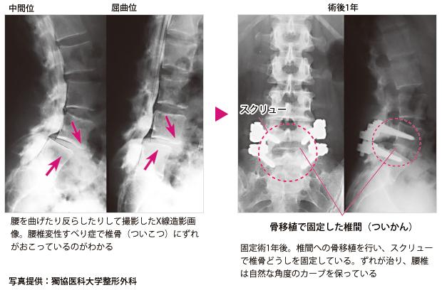 すべり 手術 腰椎 体験 記 症