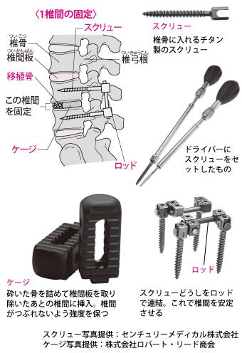 ミニオープン腰椎固定術に用いる器具
