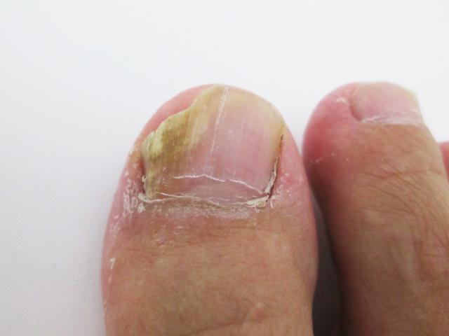爪水虫 治療 経過 写真