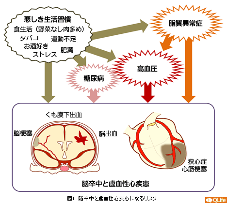 脳卒中と虚血性心疾患になるリスク図 さらにこれらの状態が続くと、元々弾力のあるゴムホースのような